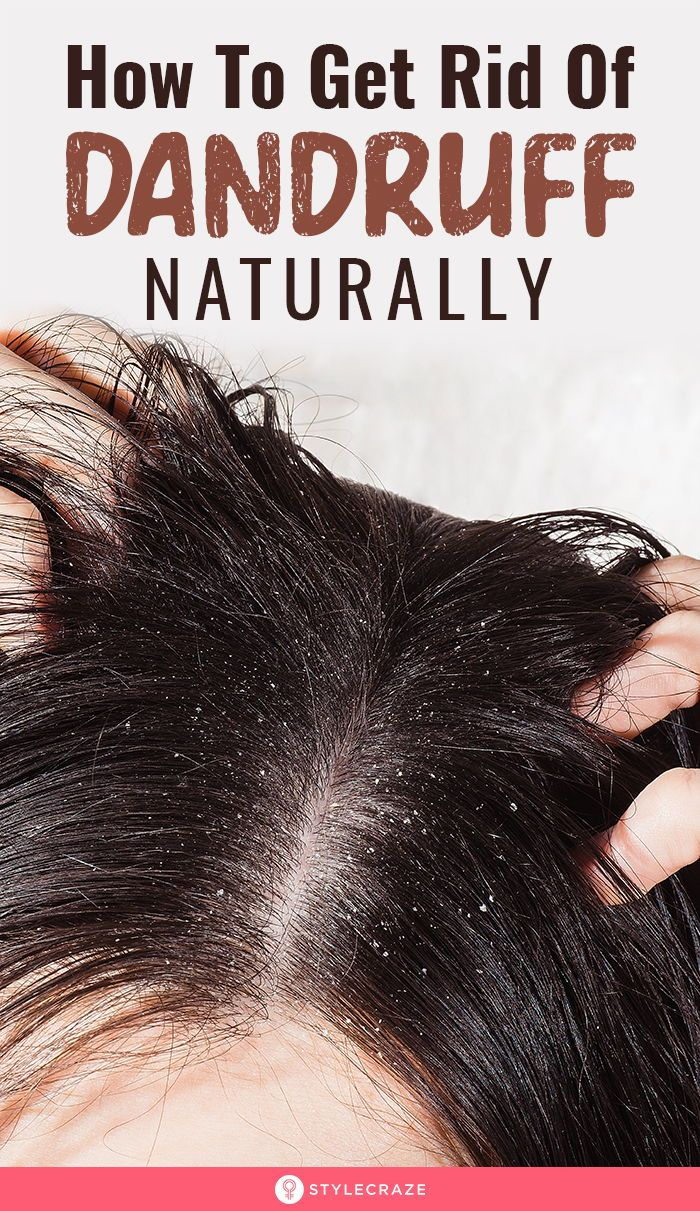 f09e8e690a14f08b118ba75e4d542973 - How To Get Rid Of Dandruff In Baby Hair