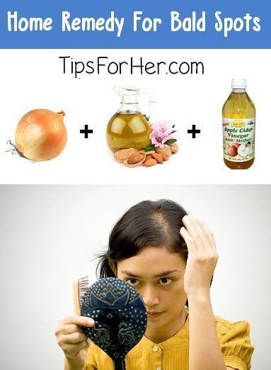 Home Remedy to Treat Bald Spots & Thinning Hair #BaldnessCure