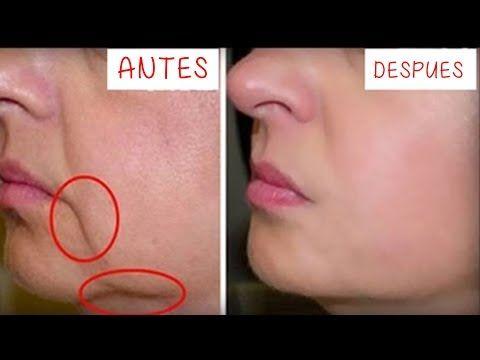 Quita las Arrugas de tu boca en 3 Días!! Remedio Casero para reducir arrugas - YouTube
