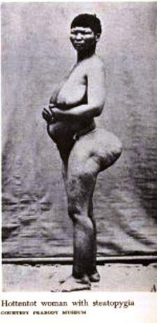 """Saartji Baartman from Southern Africa was cruelly exploited in Europe. She became known as the """"Hottentot Venus"""". Her body was displayed like an animal and mutilated after death to examine and differentiate the white and black races."""