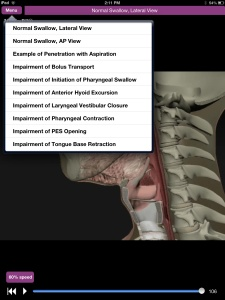 Speechy Musings: Dysphagia App Review! Plays video clips of normal and disordered swallows!