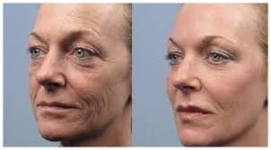 BUY 2 GET 1 FREE Choose from: Fractora & PRP save $2600 Lumecca IPL save $500 Kybella save $1500 Dermapen & Level 2 Peels save $600 *must be same service & area treated to redeem