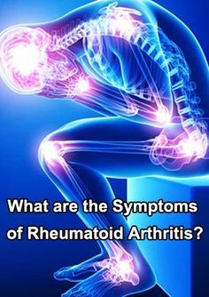 What are the Symptoms of Rheumatoid Arthritis? #Rheumatoid_Arthritis