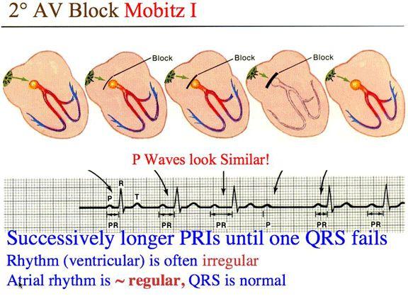 Second degree AV block (Mobitz Type I - Wenckebach)