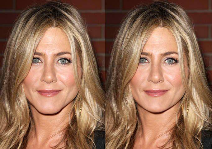 Jennifer Aniston Before and After Chin Surgery ...