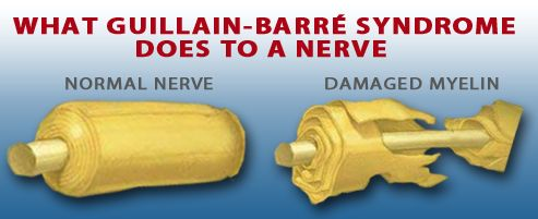 How Guillain Barre Syndrome damages nerves