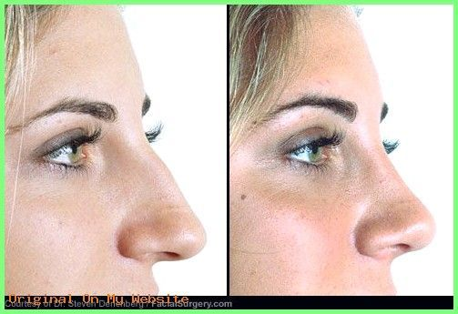 Rhinoplasty Before And After | See before and after pictures of popular cosmetic…