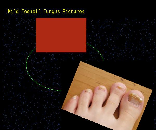 Mild toenail fungus pictures - Nail Fungus Remedy. You have nothing to lose! Visit Site Now