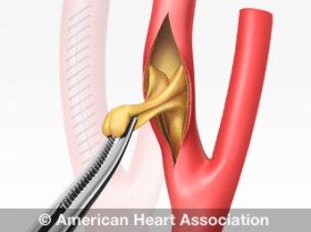 Stroke Treatments from the American Stroke Association