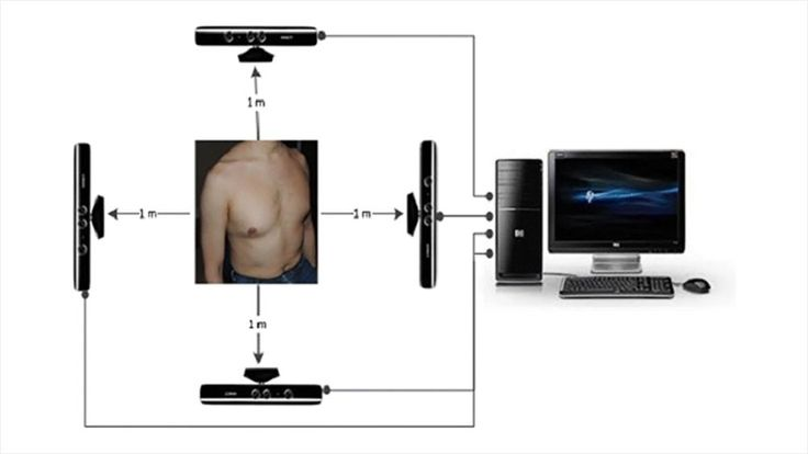 Using Xbox Kinects researchers create 3D image of a patients torso and assess respiratory function. The technique was as accurate as breathing into a spirometer and it was able to provide additional information about the movement of the chest which could help identify other respiratory problems