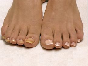 Лучшее домашнее средство от грибка ногтей, всего из 2 Смешайте яблочный уксус и теплую воду в соотношении 1:3, налейте в таз и подержите в этом растворе ноги 20 минут. После этого вытрите их насухо. Снова налейте в таз теплую воду (2 л) и растворите в ней 2 ст. л. пищевой соды. Подержите ноги в этой ванночке 15 минут, тщательно вытрите и обрежтеь все пораженные грибком участки ногтя (они легко отстанут).ингредиентов!