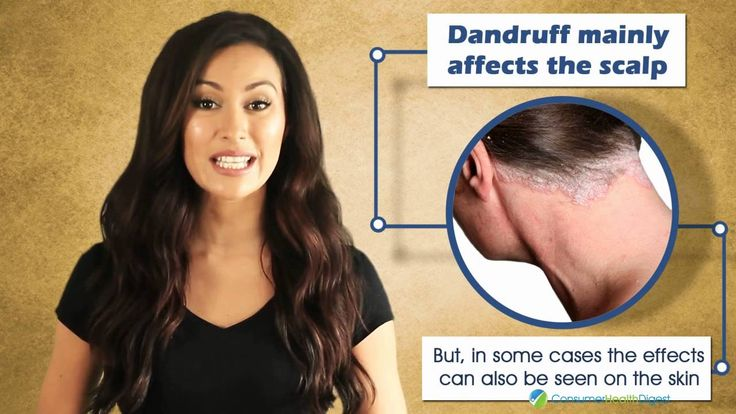Say Goodbye to Itchy Scalp and for more hair care tips follow us on ConsumerHealthDigest.com