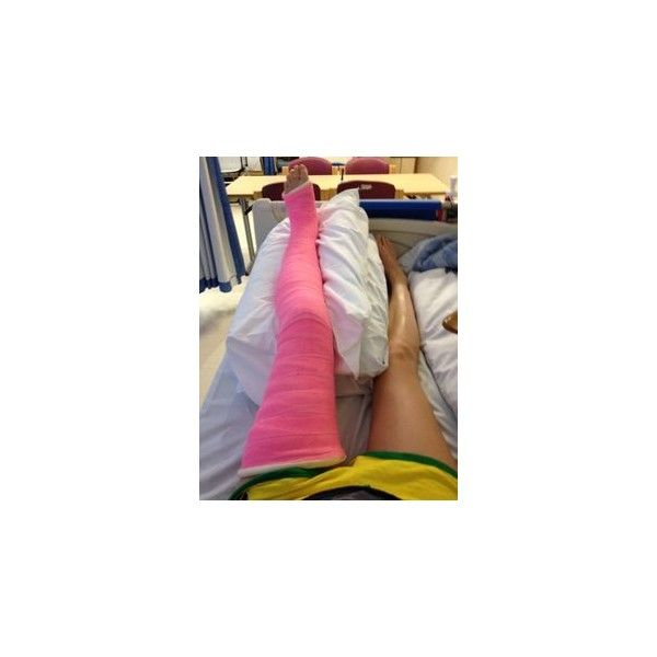 full leg cast leg casts ❤ liked on Polyvore featuring injuries, medical and wounds