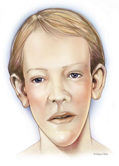 Sotos syndrome, Genetics, Radiology, Craniofacial Abnormalities, Mana…
