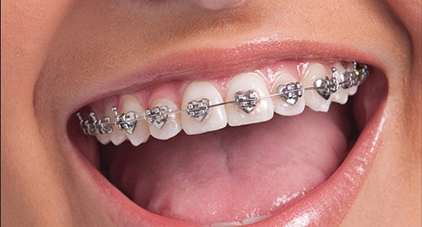 Kids can go 'wild' for multi-shaped braces | Dental Tribune International