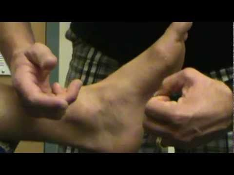 Anterior Drawer Test for Inversion Ankle Sprain - YouTube