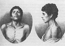 Noonan syndrome - Wikipedia, the free encyclopedia