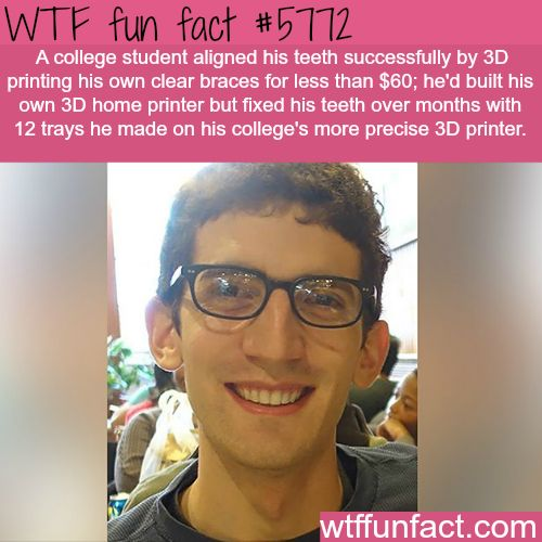 College student 3D prints his own braces - WTF fun facts #lifehacks and | http://www.letstfact.com
