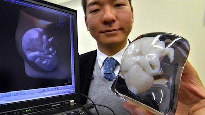 Las impresoras 3D permiten convertir ecografías en figuras 3D de tu futuro bebé – vídeo sorprendente