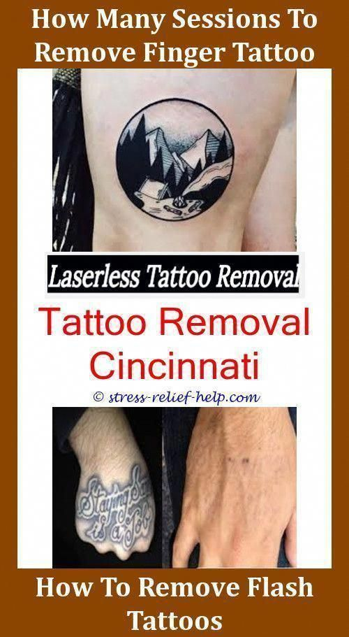 Fast Tattoo Removal Cream Name Red Before And After How To Start A Business The Info On