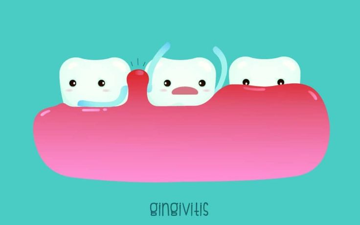 Gingivitis is an inflammation of the gums!  It is the initial stage of gum disease and the easiest to treat.   The direct cause of gingivitis is plaque - the soft sticky colorless film of bacteria that forms constantly on the teeth and gums.   People often think that when they notice blood when flossing or brushing that they are doing it wrong and stop.  But it is actually a sign of Gingivitis!  Other signs include redness swollen and tender gums. When you do notice these symptoms you…