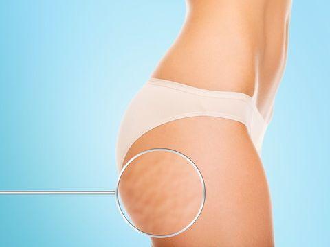 太ももが痩せにくい大きな原因のひとつは、セルライトにあります。セルライトとは何なのか。また、一度できてしまうと解消が難しいとされるセルライトの対処法について、専門家監修の記事で詳しくお伝えします。