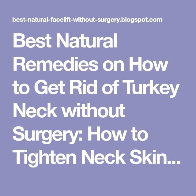 Best Natural Remedies on How to Get Rid of Turkey Neck without Surgery: How to Tighten Neck Skin - Top Tips for Loose Sagging Neck - Natural Facelift and Wrinkle Skin Care