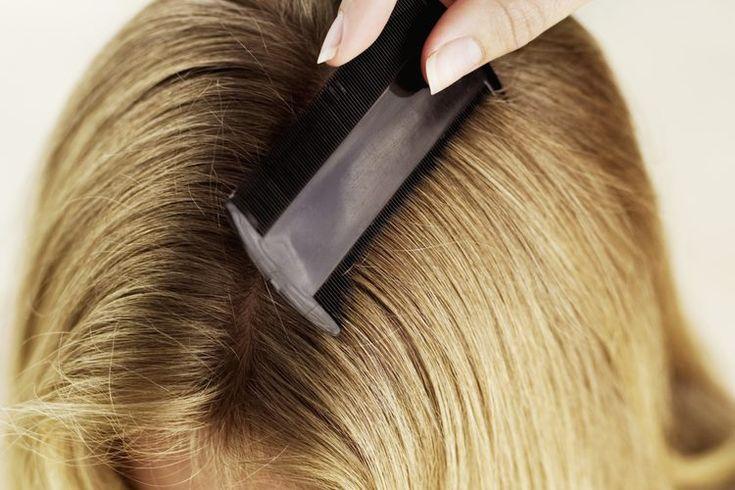 Cómo limpiar los cepillos para cabellos de los piojos | Muy Fitness