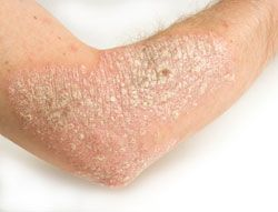 What Is Eczema? What Causes Eczema? Some of this stuff was new to me. More to research... about halfway down the page.