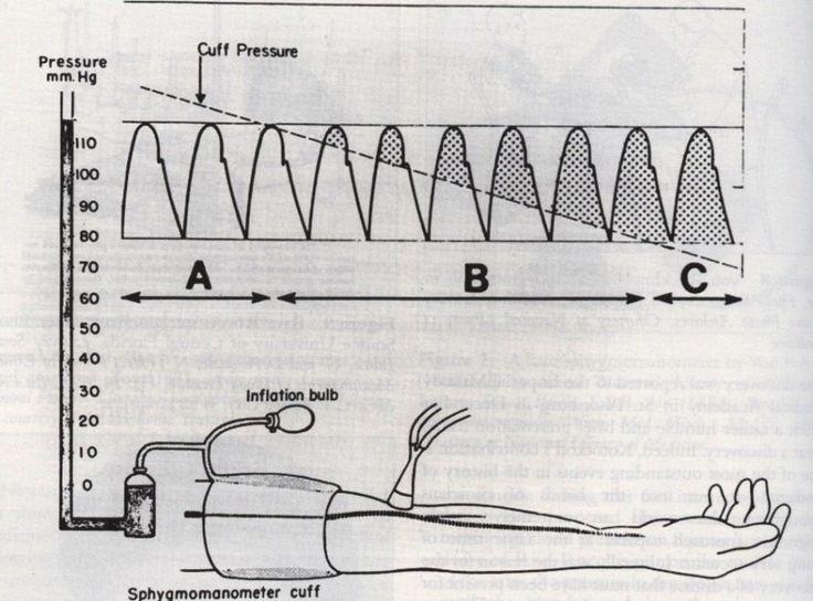 #storiadellamedicina: Nicolai Koratkoff (1874-1920) descrisse i toni che portano il suo nome nella misurazione della pressione arteriosa usando il bracciale di Riva-Rocci.