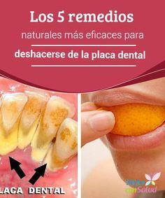 Los 5 remedios naturales más eficaces para deshacerse de la placa dental  La placa dental es una capa amarillenta que se forma en la superficie de los dientes debido a la acumulación de restos de alimentos, bacterias y gérmenes.