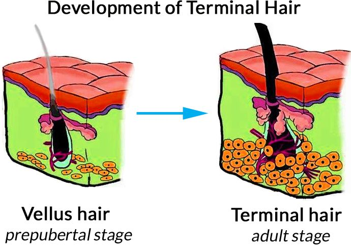 Comparison of the vellus hair (left) to the terminal hair (right) in humans. Vellus hair replaces lanugo hair on a human fetus at 36 to 40 weeks of gestation. Vellus-Hair-Diagram-The-Belgravia-Centre-Hair-Loss-Clinic-London.jpg (690×485)