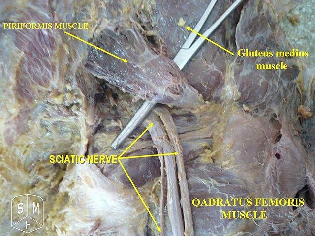 Sciatic nerve and piriformis muscle | Cadaver Pictures ...