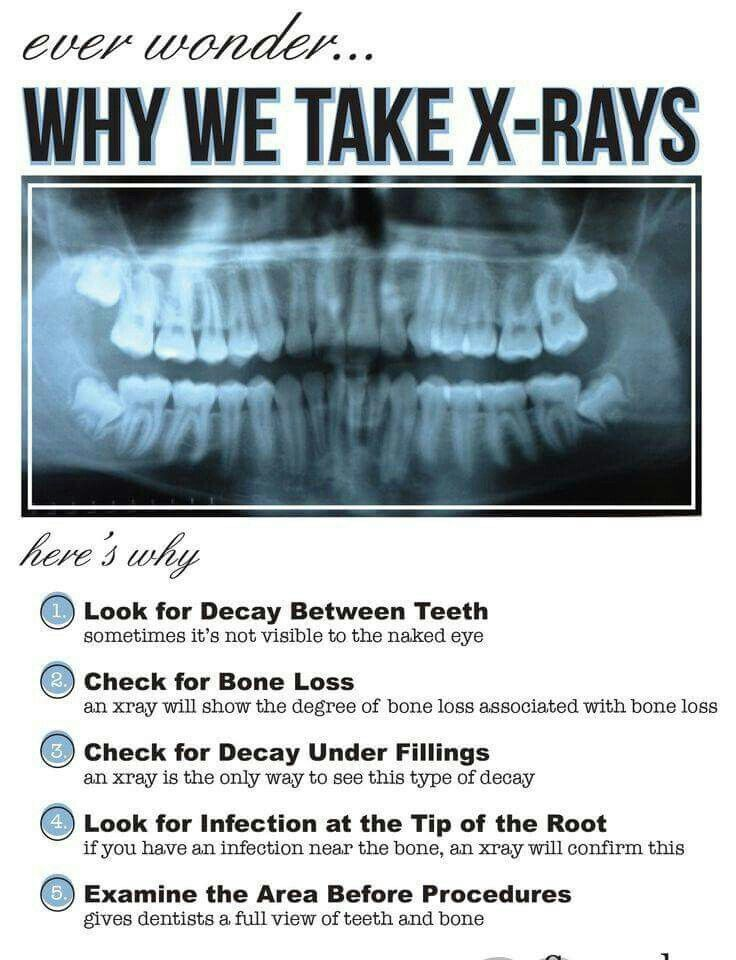 Do you ever wonder why we take X-rays?