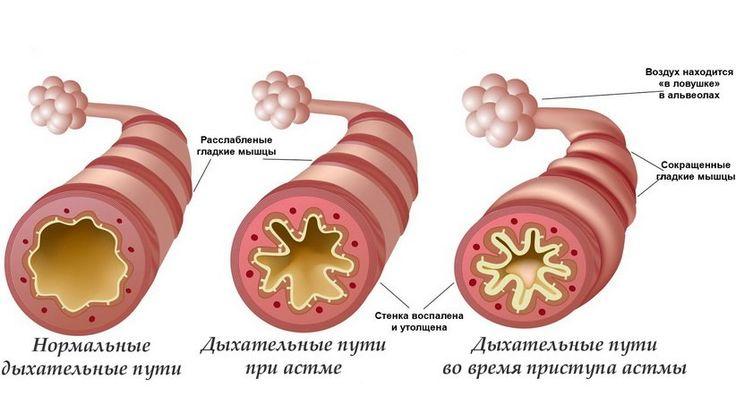 Бронхиа́льная а́стма (от др.-греч. ἆσθμα — «тяжёлое дыхание, одышка») — хроническое воспалительное заболевание дыхательных путей.