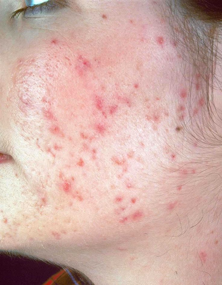 Strange pimples blend in with skin
