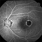 Presumed Ocular Histoplasmosis Syndrome In The Eye Causes Loss Of Central  Vision.  Presumed Ocular Histoplasmosis Syndrome