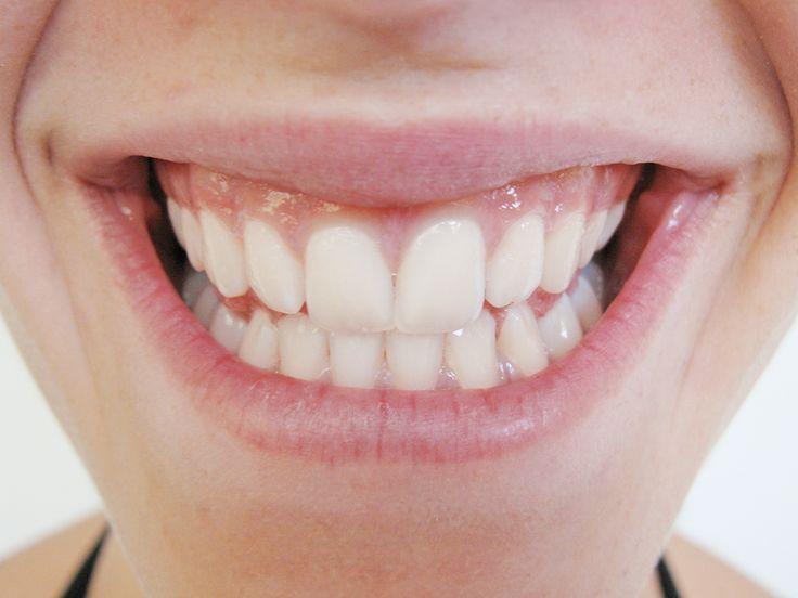 """La homeopatía alivia el dolor dental o """"dolor de muelas"""" y es muy efectiva en caso de que exista una …"""