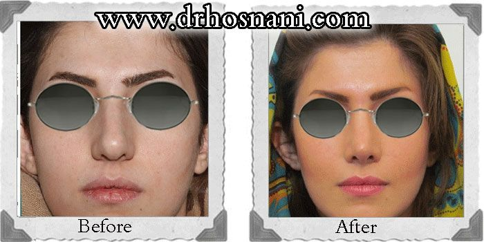 Open rhinoplasty was performed to improve the nasal tip definition and refine the nostrils. #rhinoplasty #nosejob #Iran #nose_job_for_round_tip #nose_job_reshape_nostrils #nose_job_narrow_nasal_tip For more before and after photos of nose job, visit the website.
