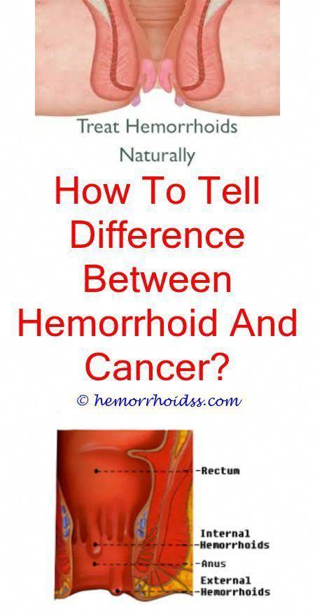 piles do hemorrhoids sting and burn? - how to make ...