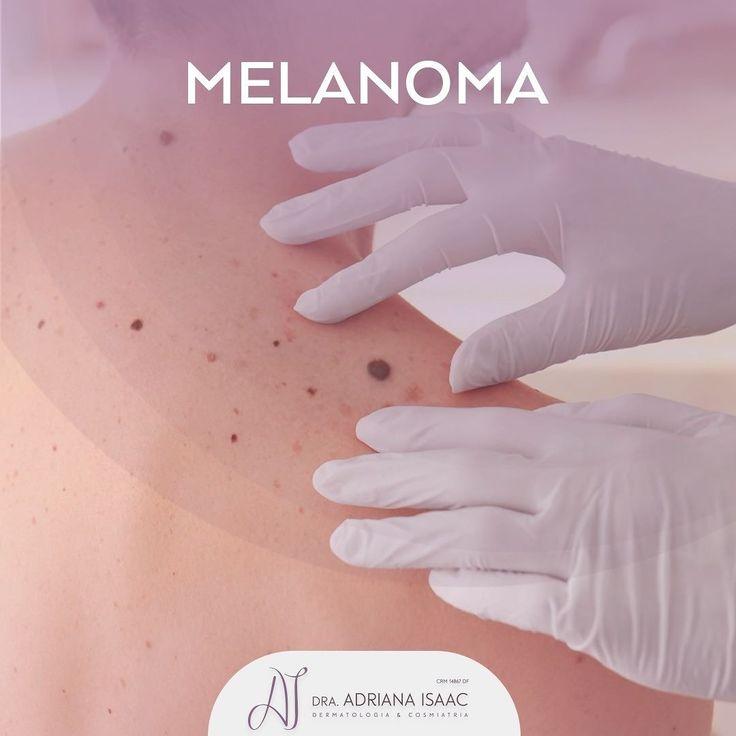 O melanoma é um dos tipos de câncer mais fatais e felizmente é o tipo mais raro de câncer de pele. Mesmo assim dados do Inca mostram que aproximadamente 181 mil pessoas tiveram esse diagnóstico em 2016 no Brasil. Ele se origina dos melanócitos as células que tem o pigmento da nossa pele a melanina. Por isso geralmente se assemelham a pintas escuras que podem crescer conter vários tons de castanho ou preto e bordas irregulares. A exposição ao sol desde a infância é um dos principais fatores…