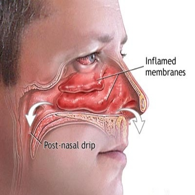 Best Natural Remedy For Nasal Congestion