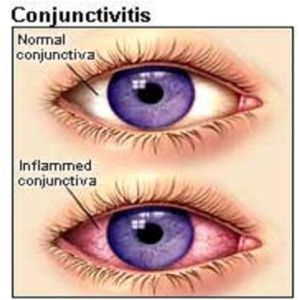 Home Remedies For Conjunctivitis Pink Eye - some of these seem more irritating to the eye than soothing. I was told by an ophthalmologist to simply wash the eyes several times a day with diluted baby shampoo. Worked like a charm.