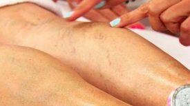 Mon dermatologue m'a montré ces remèdes pour soigner les varices sur les jambes…A essayer Impérativement !