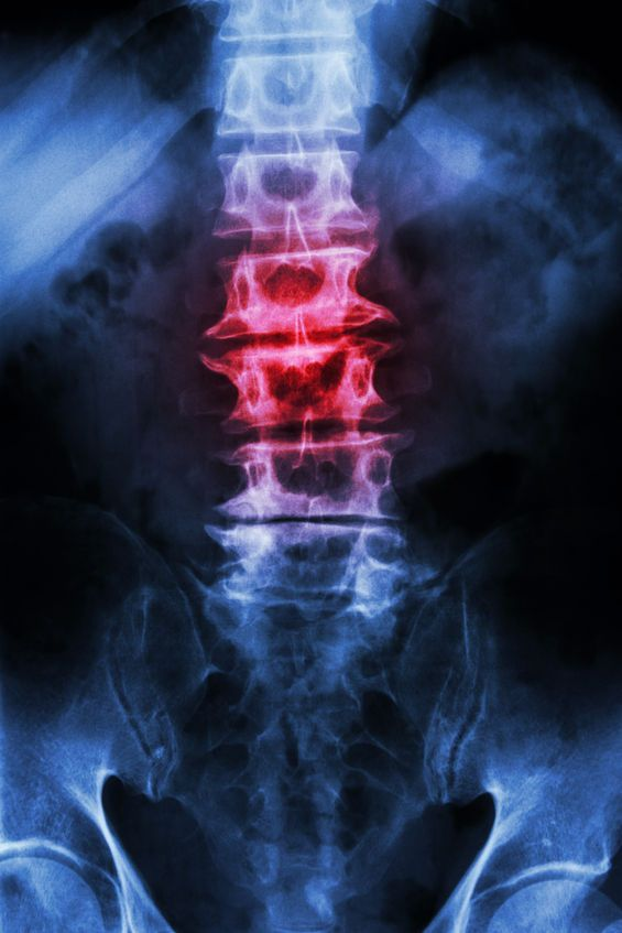 The degenerative process of spondylosis (spinal osteoarthritis) may impact the cervical, thoracic, and/or lumbar regions of the spine. This natural part of aging affects the intervertebral discs and facet joints, and it may cause pain. Learn more