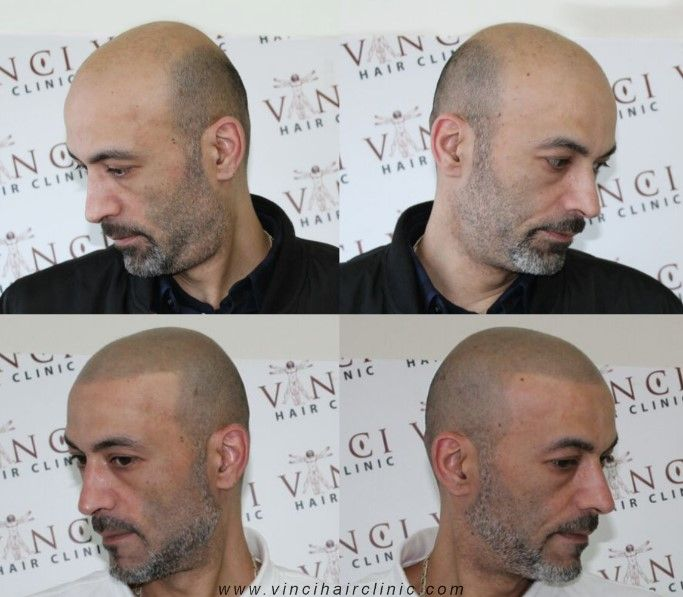 At Vinci Hair Clinics, we take an unique approach to our hair restoration procedures and are confident that our Scalp MicroPigmentation process is the best available. We have often seen clients who have had unsatisfactory results from other practitioners and even beauty salons. We take your hair-restoration journey seriously, with the understanding that this is a medical procedure and not a decision that you will have taken lightly. #pigmentation #SMP #alopecia #microscalppigmentation #MSP