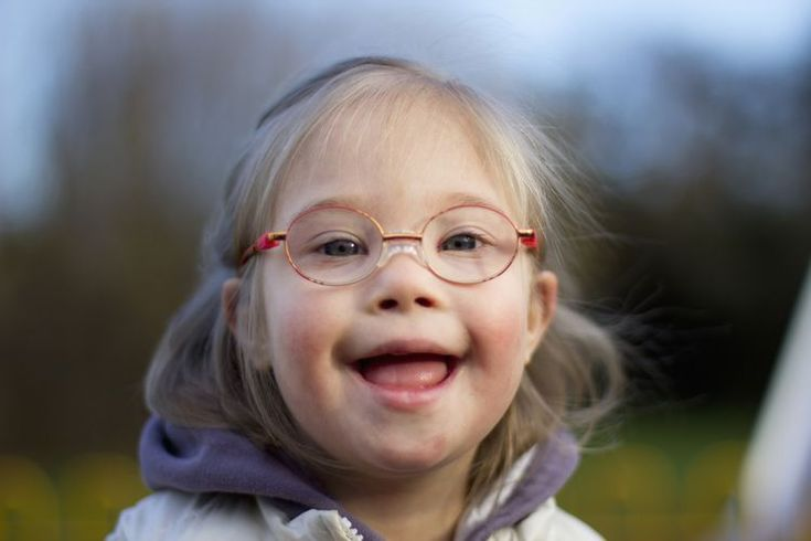 What Are the Signs and Features of Down Syndrome?