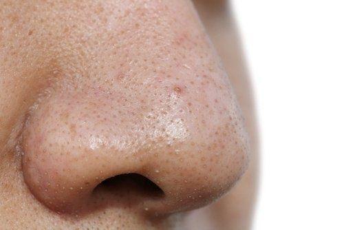 5 Gesichtsmasken gegen Mitesser