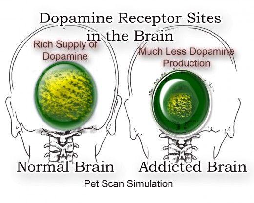 Pet Scan Simulation Reveals Dopamine Receptor Sites in the Brain