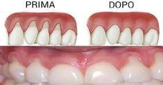 La maggior parte delle persone non sanno di avere recessione gengivale perché avviene gradualmente. Il primo segno di recessione gengivale è di solito la sensibilità dei denti e si può notare un dente appare più lungo del normale.